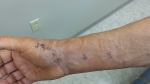 Michael's arm 2 post-cast 10-7-15