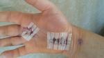 peggs-hand-bandage-off-10-6-16